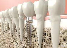 accendiltuosorriso-implantologia-home